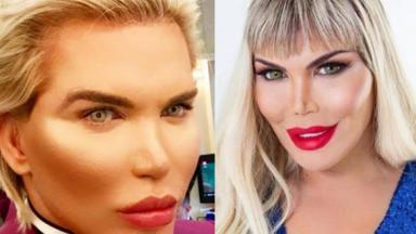 Jessica Alves em antes e depois, ex-Ken Humano