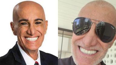 Amin Khader careca (à esquerda) e Amin Khader com cabelo (à direita) em foto montagem