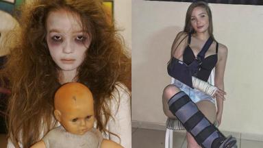 Anna Livya Padilha como Menina Fantasma (2012) e atualmente, se recuperando de um acidente