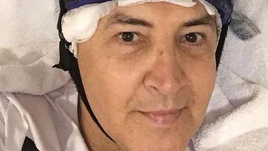 Beto Barbosa faz tratamento contra o câncer
