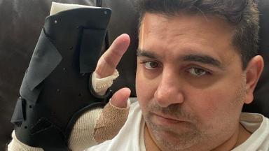 Buddy Valastro exibindo sua mão enfaixada após cirurgia