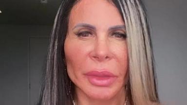 Gretchen exibiu resultado de harmonização facial