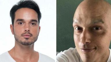 Leo Rosa antes e depois