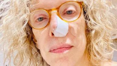 Marília Gabriela com curativo no nariz