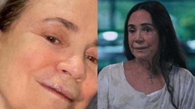 Regina Duarte relatou ter sofrido acidente há duas semanas em São Paulo; atriz machucou a boca e quebrou dentes