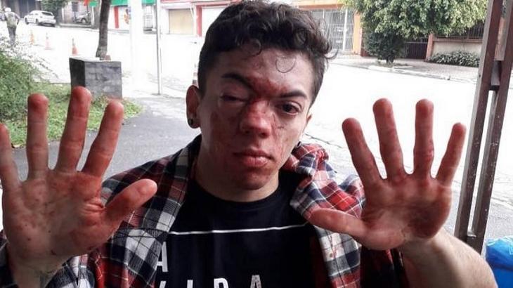 Marcelo Santanna denunciou homofobia em ônibus de São Paulo. Foto: Divulgação