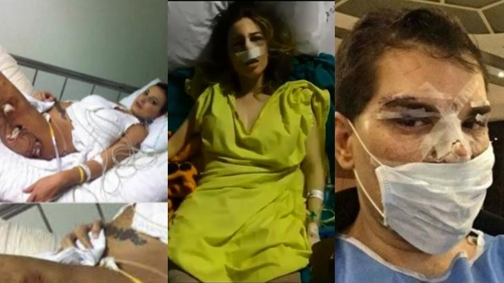 Veja os famosos que viram a morte de perto com procedimentos estéticos