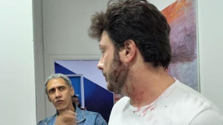 Danilo Gentili encenou uma agressão - Foto: Reprodução/Instagram