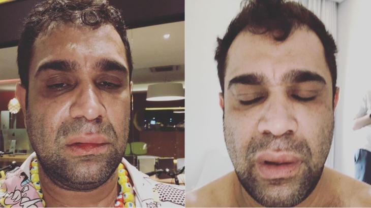Evandro Santo revela agressão após show: