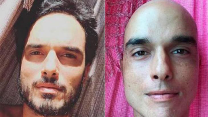 Léo Rosa antes e depois do tratamento contra o câncer - Foto: Reprodução
