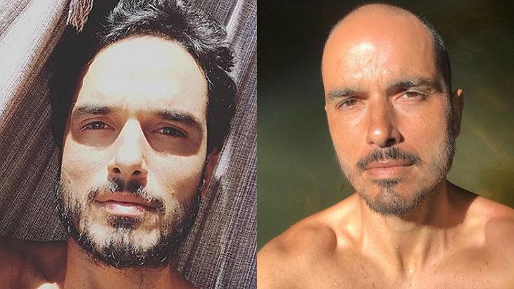 Léo Rosa posta foto com os cabelos crescendo e emociona web