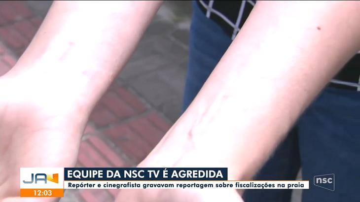 Braços da repórter da NSC agredida