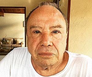 Com caxumba, Stênio Garcia segue com rosto inchado e ouvido prejudicado