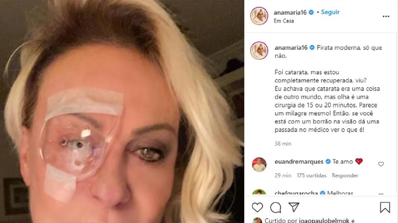"""Ana Maria Braga passa por cirurgia e mostra resultado: \""""Pirata moderna\""""; veja mais"""
