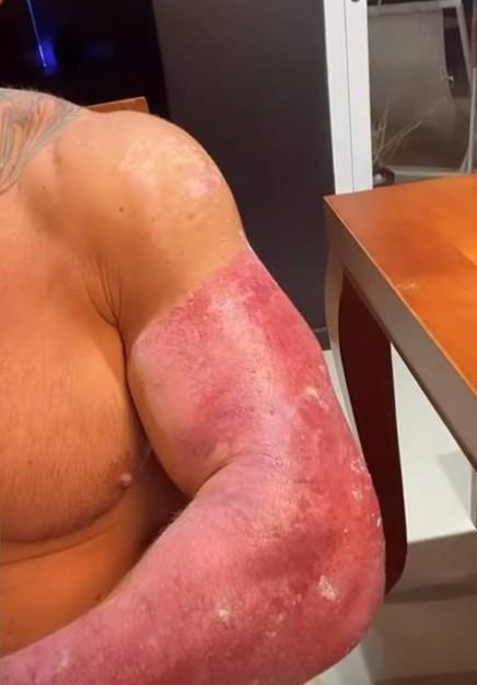 """Léo Stronda mostra cicatriz após acidente com botijão de gás: \""""Melhorando\"""""""