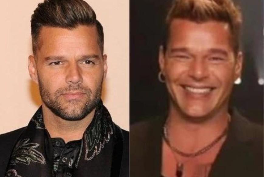 """Ricky Martin nega procedimento no rosto após polêmica: \""""Inchaço\"""""""