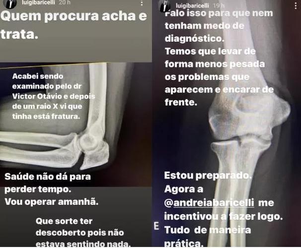 """Luigi Baricelli passa por operação e alerta: \""""Saúde não dá para perder tempo\"""""""