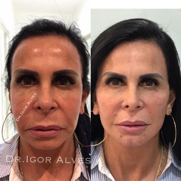 Barata e não invasiva: Harmonização facial vira queridinha de famosos