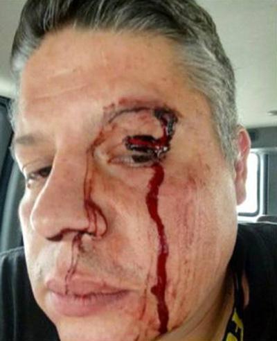 Equipe da Televisa é brutalmente agredida durante gravação no México