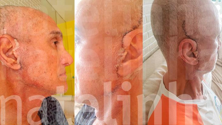 Veja como ficou Amin Khader após cirurgia plástica no rosto