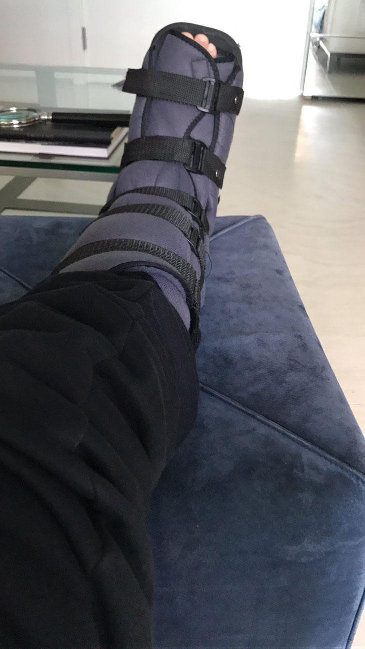 """William Bonner quebrou o pé correndo: \""""Tendão se esticou\"""""""