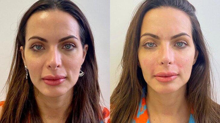 Carla Prata mostra antes e depois do procedimento