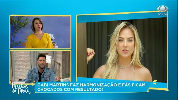 Cátia Fonseca critica harmonização de Gabi Martins