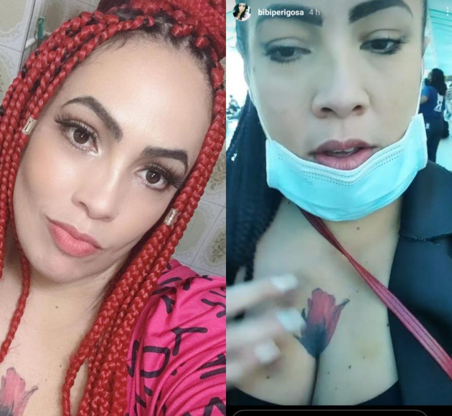 Montagem com fotos de Fabiana Escobar, tranças no cabelo e exibindo hematoma no peito após ser agredida em assalto