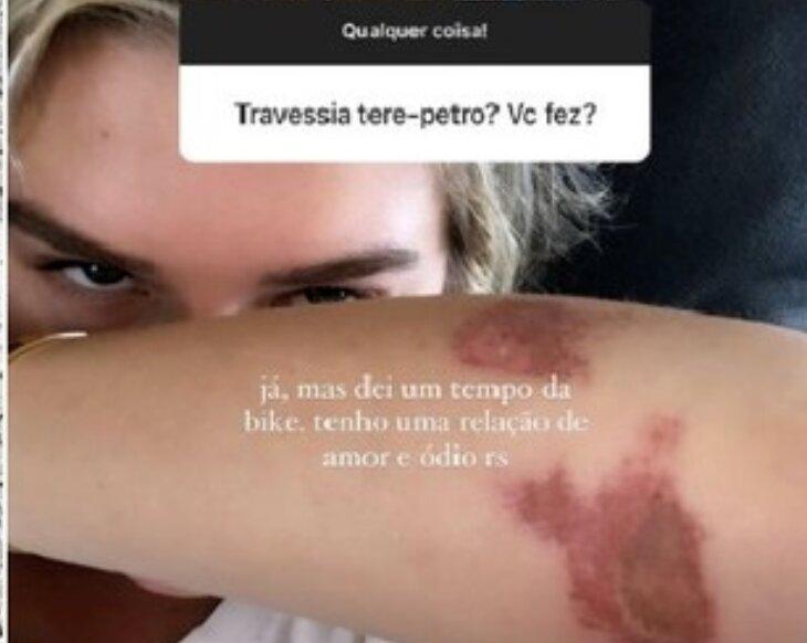 Fiorella Mattheis sofre acidente e surge com hematomas