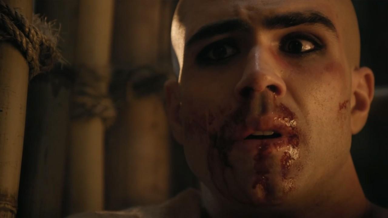 José tenso com sangue no rosto