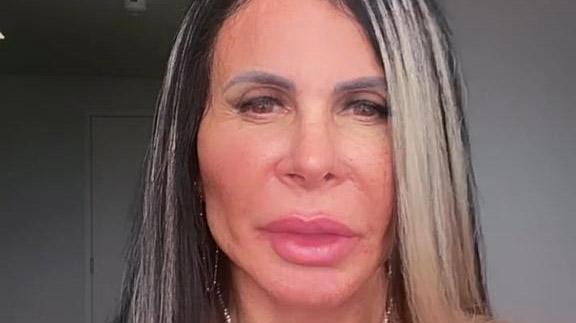 Gretchen mostra resultado de cirurgia