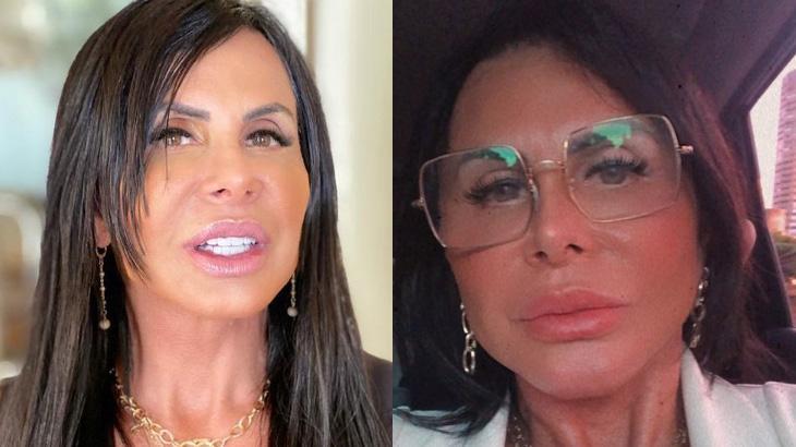 Gretchen antes e depois da plástica