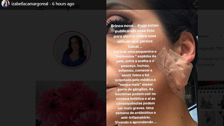 Apresentadora da Globo tem infecção após mexer em espinha