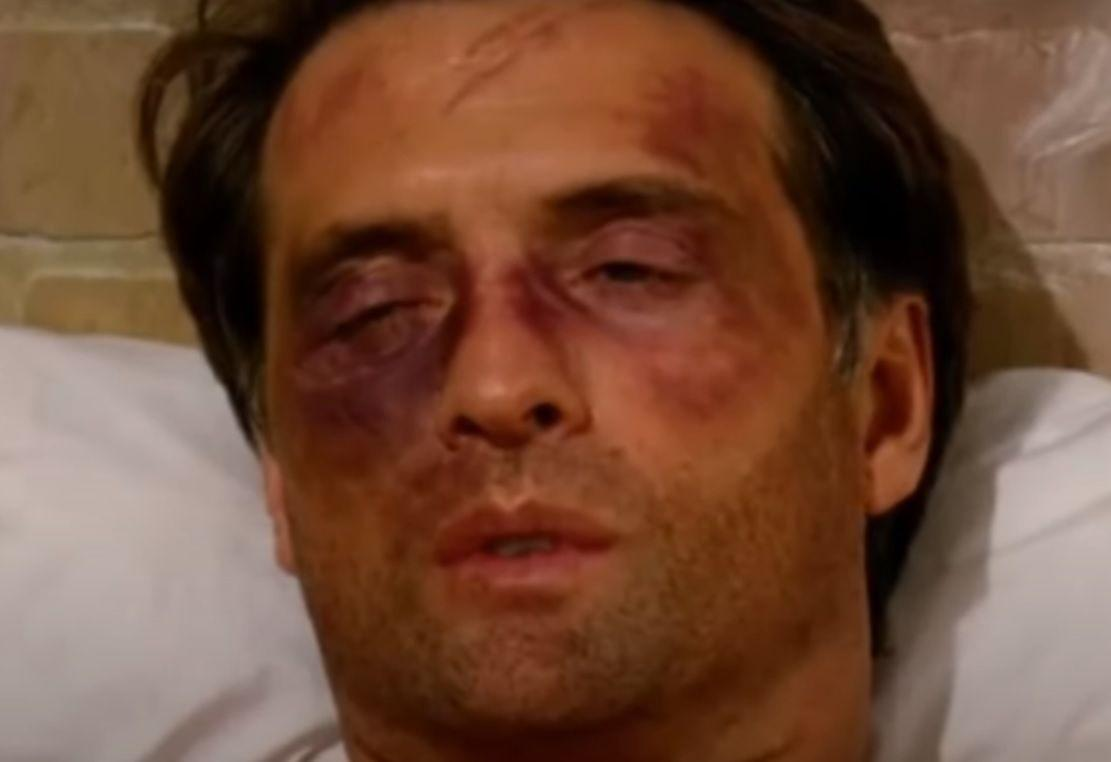 Jerônimo abre os olhos ainda muito inchados por causa dos hematomas