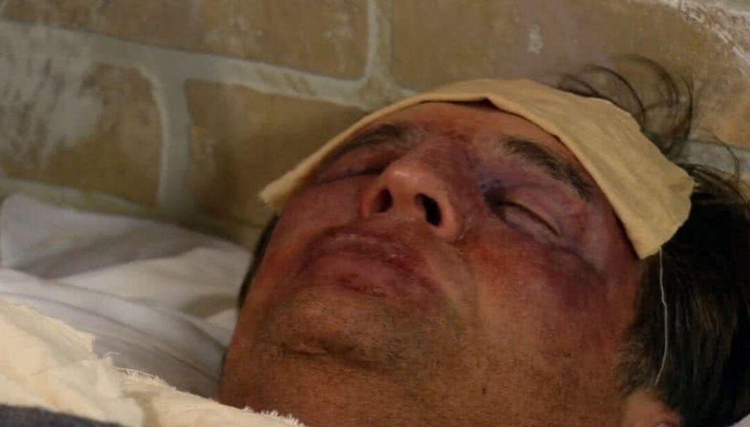 Jerônimo dormindo com hematomas no rosto e um lenço na testa