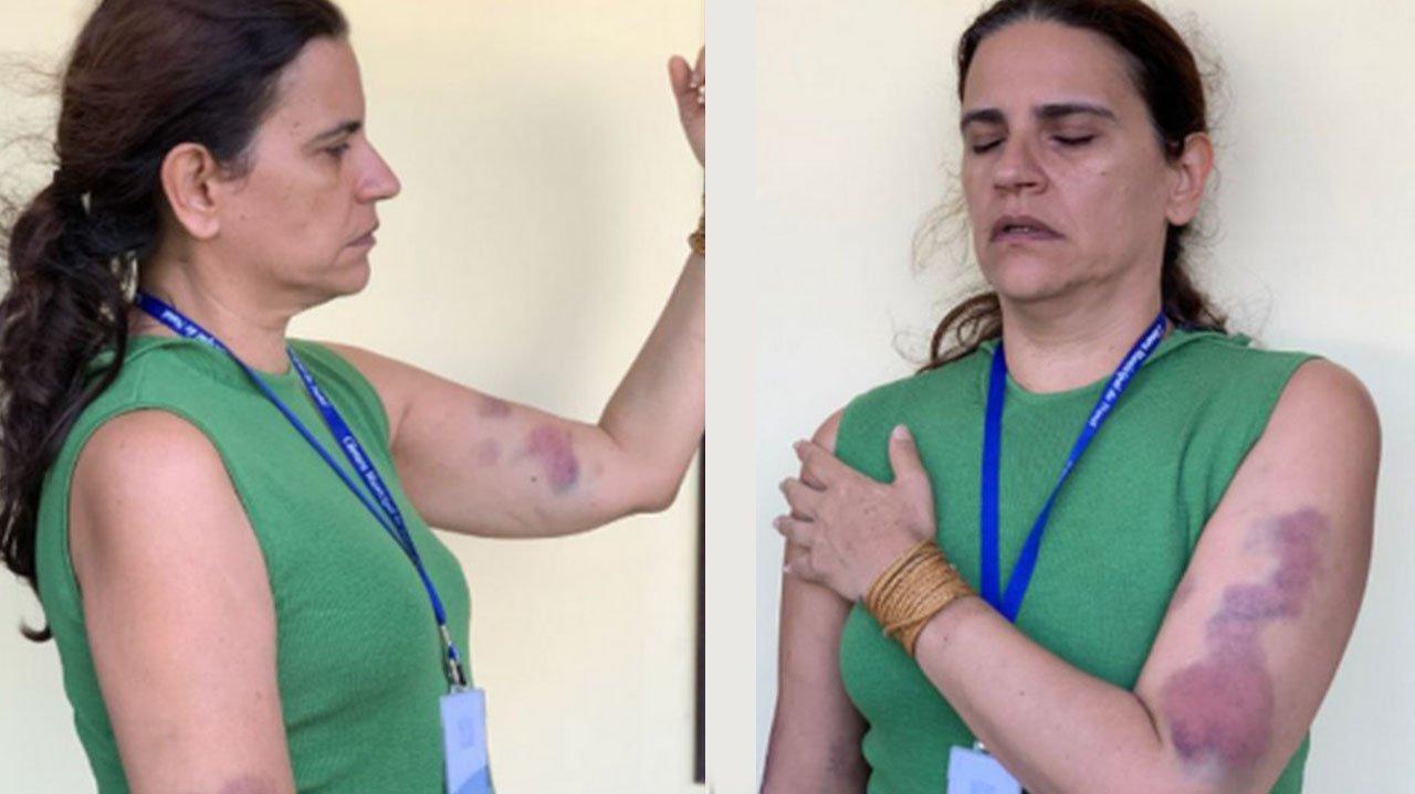 Renata Fernandes Paiva mostrando braço roxos