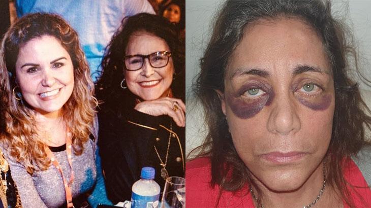 Karen Keldani, ao lado da cantora Joanna (primeira foto), agrediu a mãe, Nely Habib